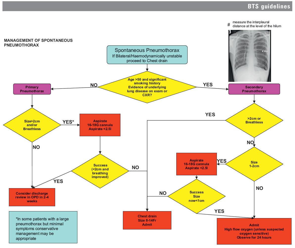 Pneumothorax treatment guidelines - Pneumothorax Guidelines